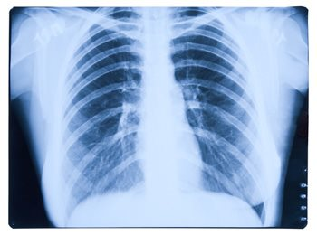 The Life-Ending Prognosis of Mesothelioma