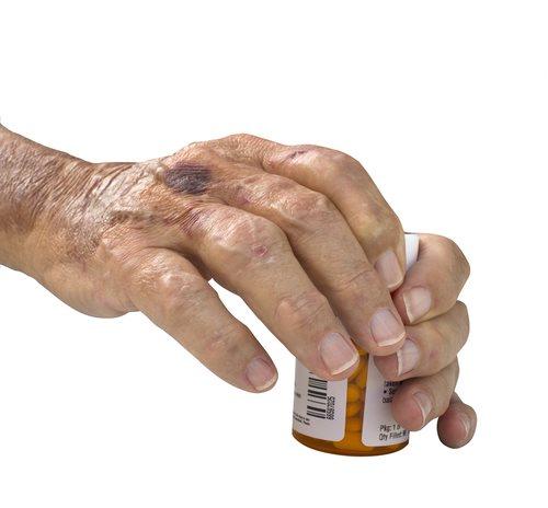 Xeljanz Approved for Rheumatoid Arthritis